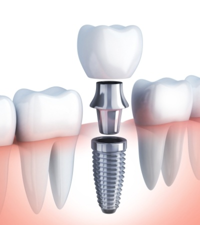 Animated dental implant supported replacement tooth